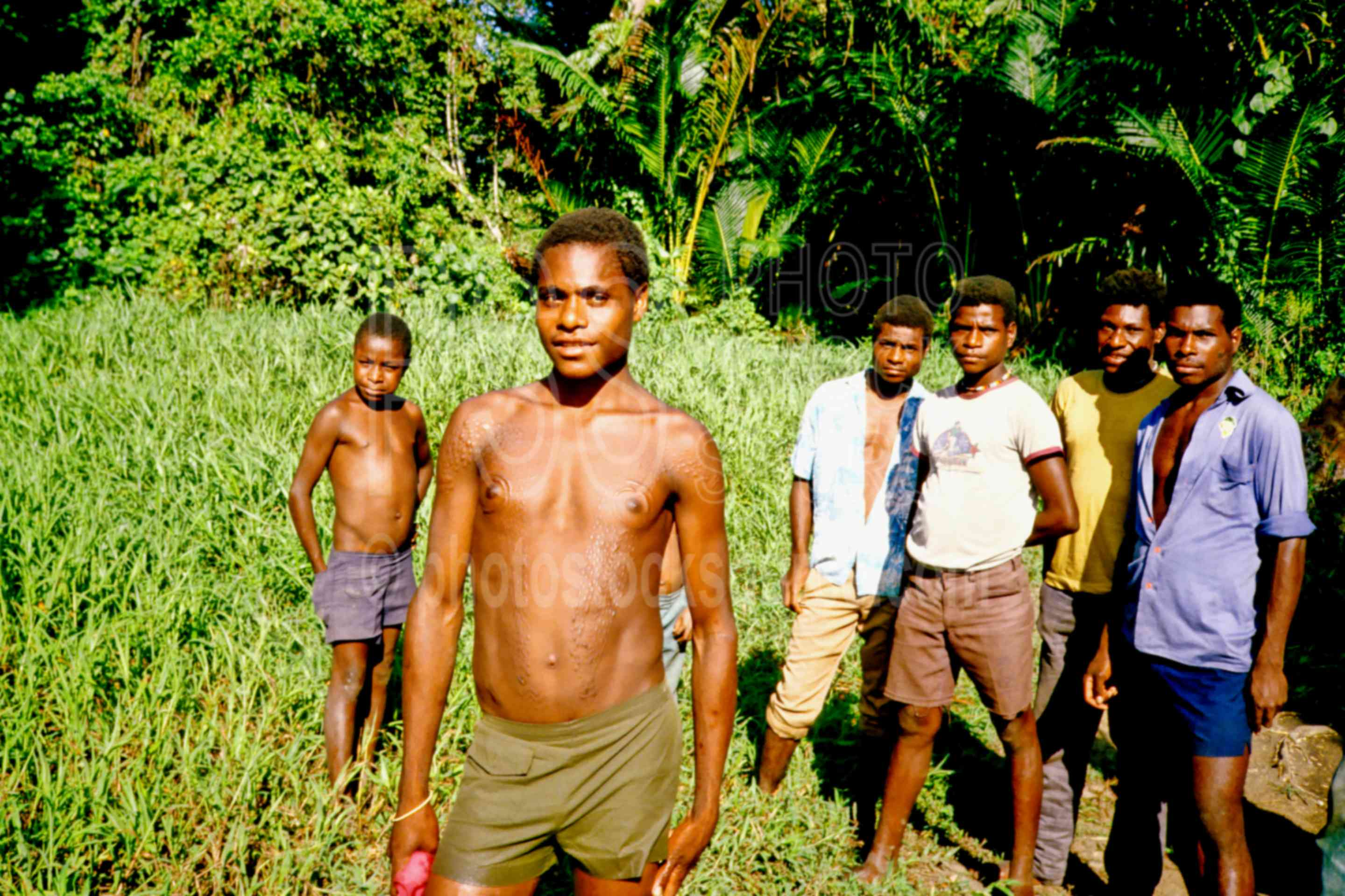 Boy showing initiation scars,boys,ceremonial,group,initiation,scar,scarring,scars